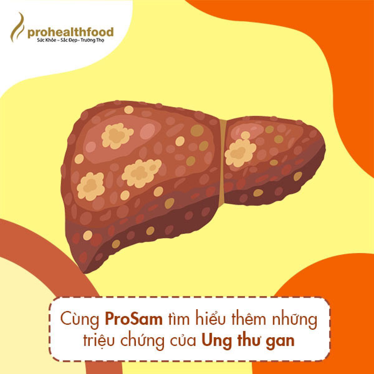 Cùng ProSam tìm hiểu thêm những triệu chứng của ung thư gan.